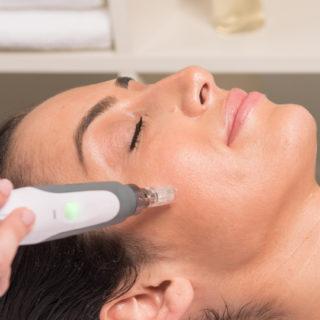 Tratamento de Rosto: Skin Pen - Microagulhamento